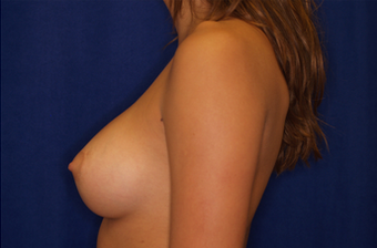 Breast Implants after 629960