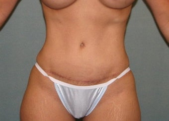 Tummy tuck after 403886