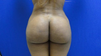 Brazilian Butt Lift/Fat Grafting Buttock Augmentation after 599828