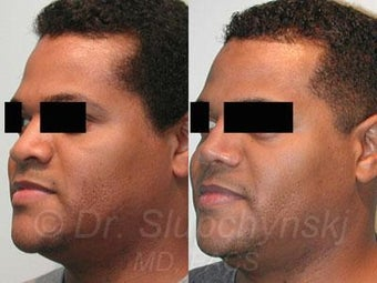 African American Rhinoplasty after 374018