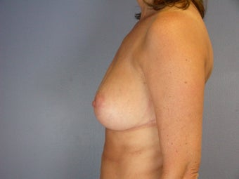 Breast Reduction  after 306348