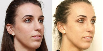 Septoplasty with rhinoplasty after 619694
