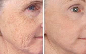Active FX Fractional Laser Resurfacing before 253622