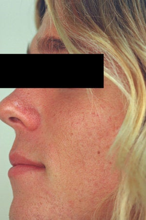 Laser Resurfacing for Enlarged Pores before 89100