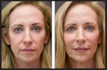 Botox & Juvederm before 561073