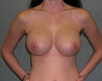 Breast Implant Revision after 435150