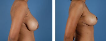 Breast Reduction after 355740