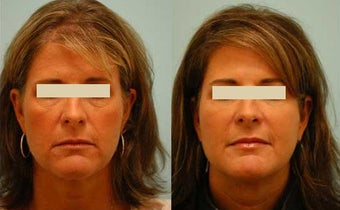 Fat Transfer/Fat Grafting/Facial Rejuvenation before 136343
