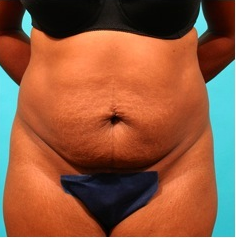 Tummy Tuck before 55085