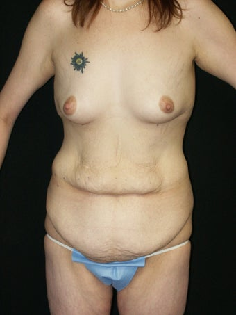 Belt Lipectomy before 379801