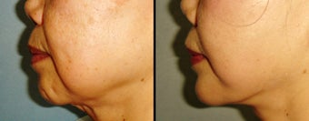 Chin Augmentation before 649420
