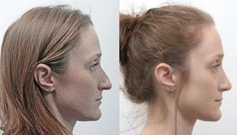 Rhinoplasty before 229518