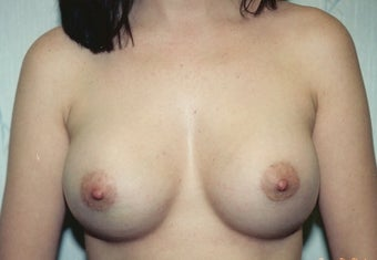 Breast Augmentation after 264318