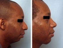 Rhinoplasty before 130772