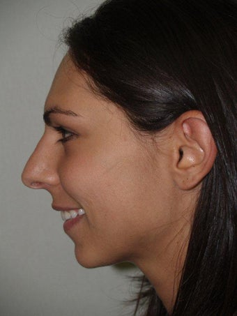 Rhinoplasty and Chin Implant before 210109