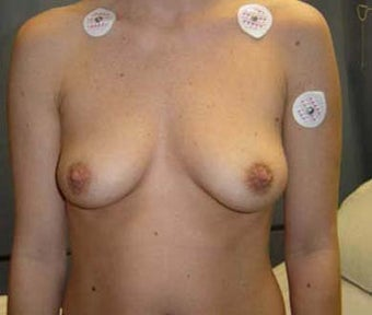 Breast Augmentation  before 131651