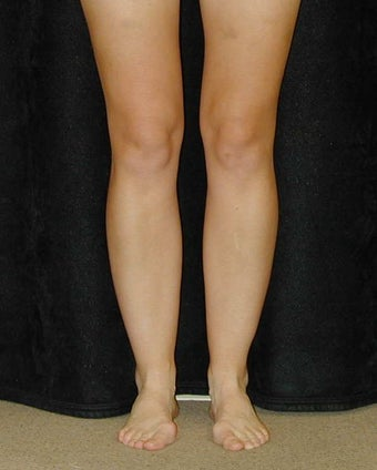 Liposuction for lower legs before 98208