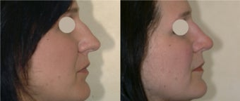 Before and After Rhinoplasty before 87078