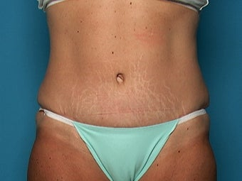 Abdominoplasty after 134581
