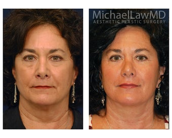 Facial Rejuvenation - Lower Face Lift before 395206