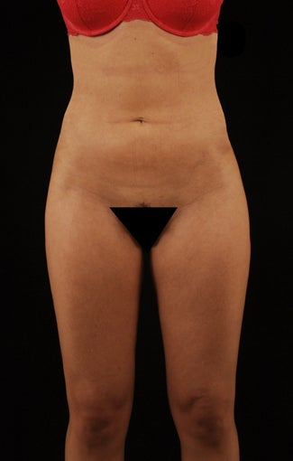 Liposuction after 512878