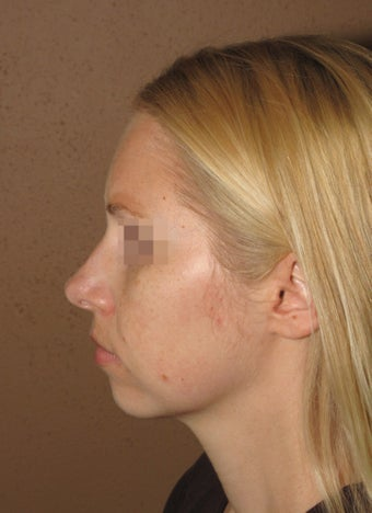 Chin enlargment and rhinoplasty combo before 270706
