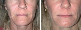 Juvederm Treatment to Naso-labial folds before 6397