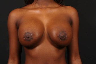 Areola reduction after 567572