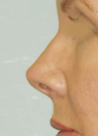 Revision Rhinoplasty 410624