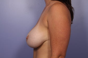 Breast Augmentation  after 307920