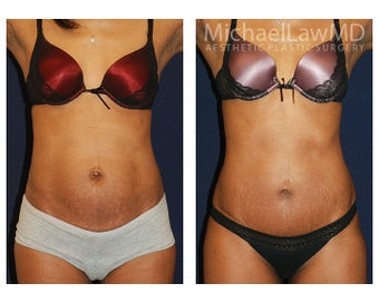 Abdominoplasty - Tummy Tuck before 396174