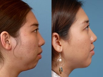 Chin Augmentation before 409091