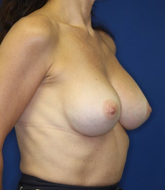 Breast Implants 381816