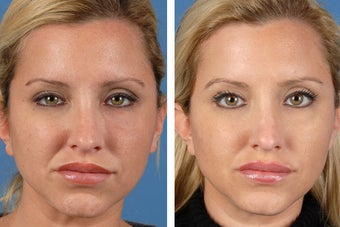 Botox Cosmetic & Restylane after 356613