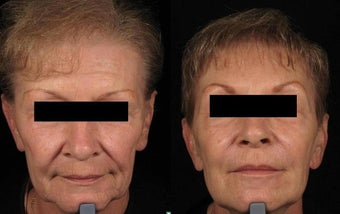 Botox and Sculptra before 67351