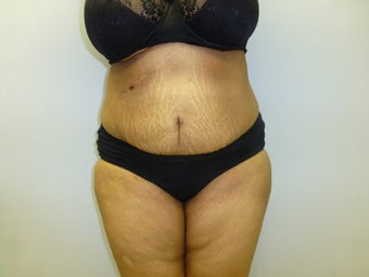Mini Tummy Tuck and liposuction  after 590774