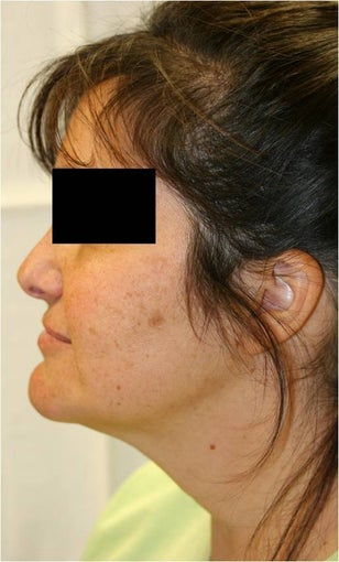 SmartLipo Neck Left Lateral View
