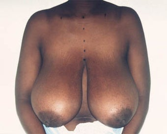 Breast Lift before 285340
