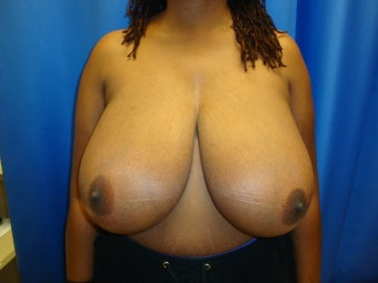 breast reduction before 407299