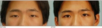 "Asian Blepharoplasty (""Double Eyelid"" Procedure) before 136813"