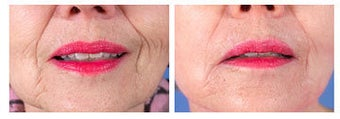Restylane for nasolabial folds before 6264