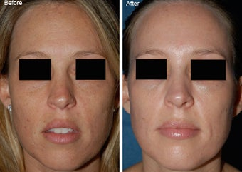 Fraxel Laser Resurfacing before 97888