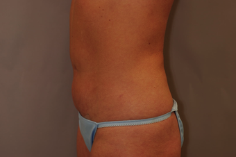 Tummy Liposuction after 229689