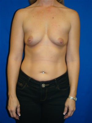 Breast Augmentation Surgery before 146350