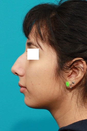 Closed Rhinoplasty before 134616