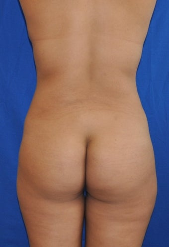 Buttock Augmentation using Fat Transfer before 253873