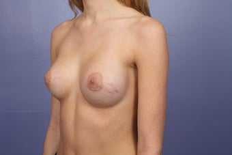 Breast Augmentation after 467317