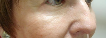 Lower eyelid and cheek lift after 429562