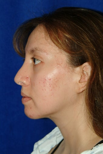 Rhinoplasty, chin implant, chin liposculpture, cheek fat pad removal after 83394
