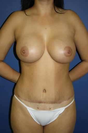 transaxillary endoscopic bilateral breast augmentation after 285069